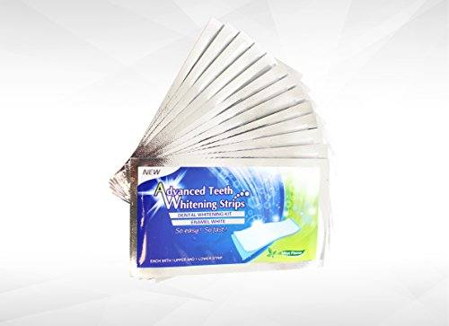 Teeth Whitening Strips – Instantly Whiter Brighter Teeth – Best Whitener Available – 28 Treatments – Makes Every Tooth as White as Possible
