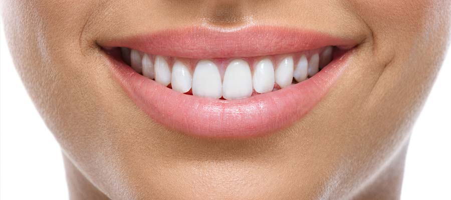 Charcoal Teeth Whitening_